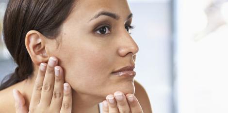 Bestrijd de onzuivere huid met PHE-resorcinol