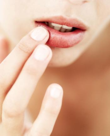 Hoe droge, schrale en kapotte lippen verzorgen