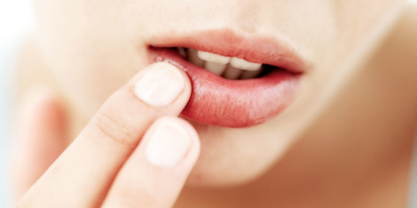 Droge lippen verzorgen: tips en tricks